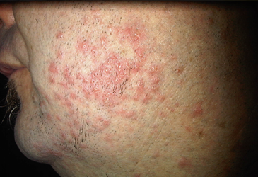 Skin Condition Exposed and Treated by L J Health Wellness Centre Nerang