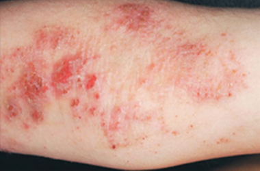 Treatment for Eczema and Dermatitis with L J Health Wellness Centre Nerang