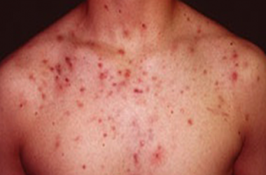 Your Guide to Managing Your Acne with L J Health